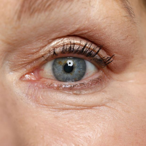 Tips to reduce eye bags