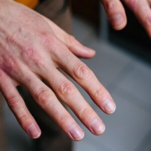 Remedies for dry hands that we find in the kitchen